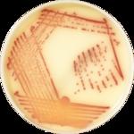 chromID<sup>®</sup> MRSA SMART